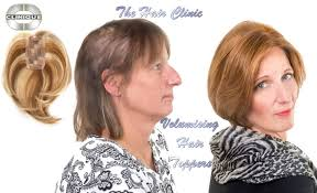 bob hair toppers the hair clinic montreal wigs toppers hair replacement hair