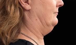 hair styles for oldb women with double chins how to reduce double chin fat coolsculpting