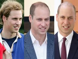 percentae of men with thinning hair at 60 it was time for prince william to finally shave his balding head