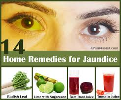 remedies for jaundice in adults