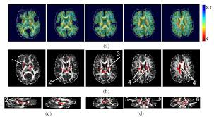 pattern classification projects sbia dti based pattern classification in schizophrenia