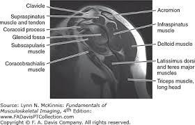 Subscapularis And Supraspinatus Radiologic Evaluation Of The Shoulder Fundamentals Of