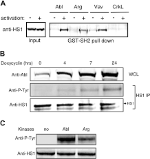 the c abl tyrosine kinase regulates actin remodeling at the immune