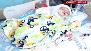 conjoined twins update jadon anias doing better than expected