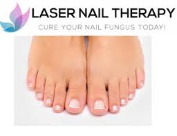 toenail fungus treatment riverside laser nail therapy clinic in