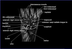 Radiology Anatomy Mri Wrist Coronal Anatomy Radiology Anatomy Images