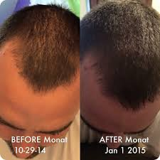 before and after using monat hair care please go to mymonat com