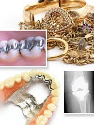 titanium allergies metal allergies to dental implants