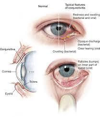eye pain from light is stabbing eye pain dangerous iris blue light filter for