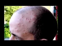 Do Bed Bugs Jump From Person To Person What Are Bed Bugs Bites Dangerous For Treatment And Prevention