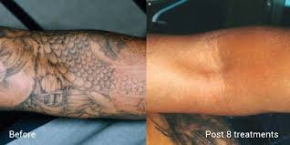 few tips to get prepared before and after tattoo removal treatment
