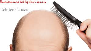 hair loss in man u2013 home remedies to stop hair loss