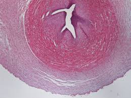 mesenchymal stem cells from extra embryonic tissues for tissue