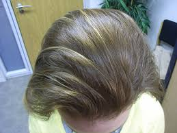 Best Hair Loss Treatments Best Hair Loss Treatment For Men Laura Williams