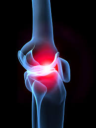 Pain Climbing Stairs by Knee Pain While Using Stairs May Be Osteoarthritis Symptom
