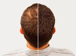 comb over the hair loss blog