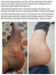 Planters Fasciitis Surgery by Got Foot Pain Plantar Fasciitis Jammed Ankles Plantar Fasciitis