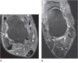 Ankle Ligament Tear Mri Ankle Mri Radiology Key