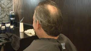 new hair growth discoveries cancer drug could be baldness remedy too