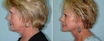 hairstyles for people with large head and jowls sagging cheeks and droopy jowls can be decreased with facial