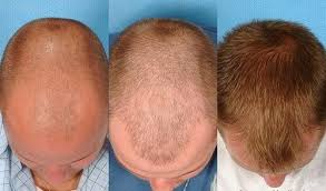transplant hair second round draft which is the best hair transplantation clinic in kolkata quora