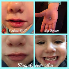 Chapped Lips Meme - the redefine lip renewing serum works fast chapped lips sore from