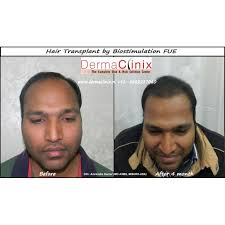 best hairtransplant in the world world best hair transplant centre in delhi dermaclinix south