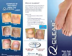 toenail fungus laser treatment fungal nails