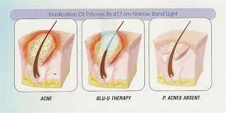 blu light therapy for acne blue light therapy เลเซอร ฆ าเช อส ว ร กษาส ว แสงร กษาส ว