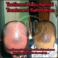 membuat minyak kemiri untuk rambut botak cara mengatasi kebotakan rambut akibat sakit tifus