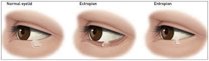 what causes eyes to be sensitive to light klamath eye center eyelid surgery klamath eye center