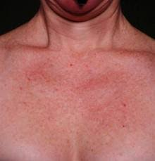 common signs of aging for the neck and chest audubon dermatology