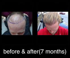hair transplants in tj reviews 7 fue hair transplant mexico with dr nader in reynosa 7 month