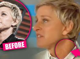 hairstyles that cover face lift scars plastic surgery secret top docs claim ellen degeneres had