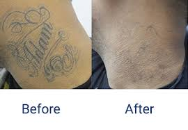 juli 2016 best tattoo removal