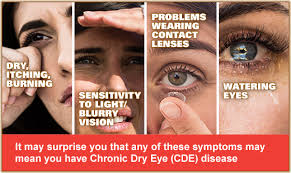 what causes eyes to be sensitive to light vision optique who has dry eye