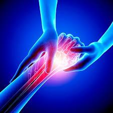 schmerzen in der handfläche schmerzen in der das kann sie verursachen spiegel