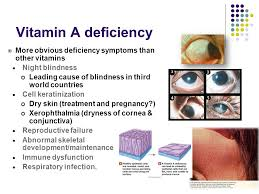 Night Blindness Deficiency ابتسام الشديebtesam Al Sheddi Ppt Download