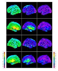 group average maps of intermethod delfmap freesurfer cortical