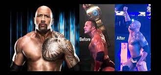 the rock went lipsuction get rid of