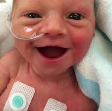 quotes about smiling child heartwarming photo showing premature baby smiling 5 days after