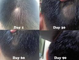 kalojoni seed oil hair scalp from hair loss to hair growth my 90 days plan young living