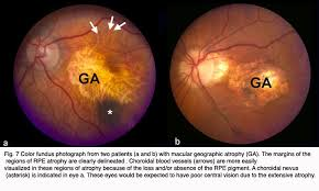 Does Macular Degeneration Always Lead To Blindness Age Related Macular Degeneration Amd By Gregory S Hageman