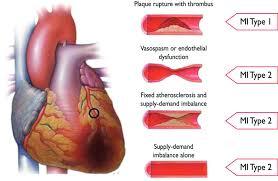 third universal definition of myocardial infarction circulation