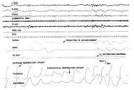 sleep disorders laboratory evaluation thoracic key