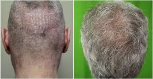 hair transplant america best fue hair transplant doctor dr u in los angeles 1 310 318 1500