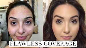 best makeup for acne dark spots makeup vidalondon