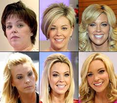 hairstyles for surgery best 25 kate gosselin plastic surgery ideas on pinterest kate
