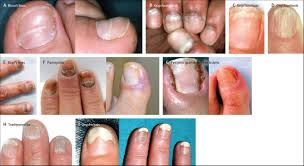nail toxicities induced by systemic anticancer treatments the