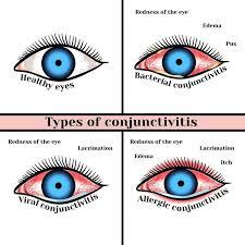 applique ladari attention a la conjonctivite plusieurs cabinet ophtalmo dr